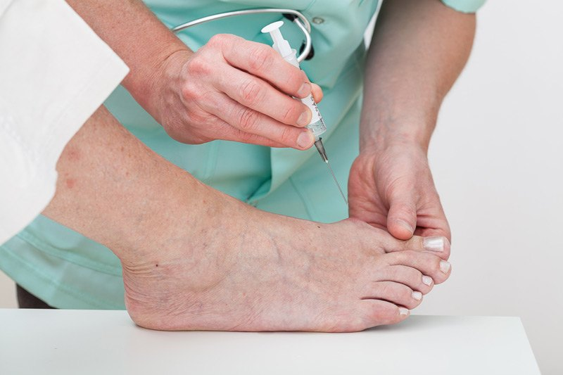 Steroid injections for foot tendonitis 16 week steroid cycle